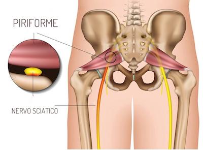 disegno anatomico del muscolo piriforme